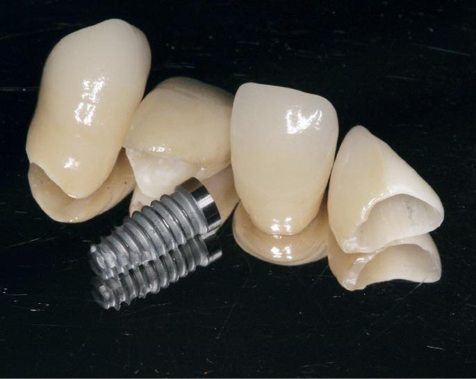 CAD/CAMで作製されたジルコニアオールセラミック。先端技術により天然の歯に匹敵する強度と色調をもつ